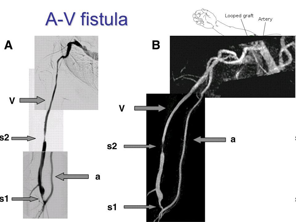 A-V fistula iatrogenous dialysis radiocephalic