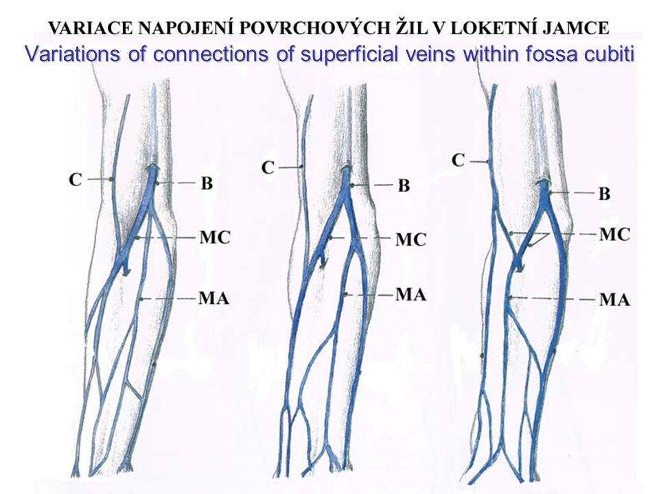 Variations of connections of superficial veins within fossa cubiti