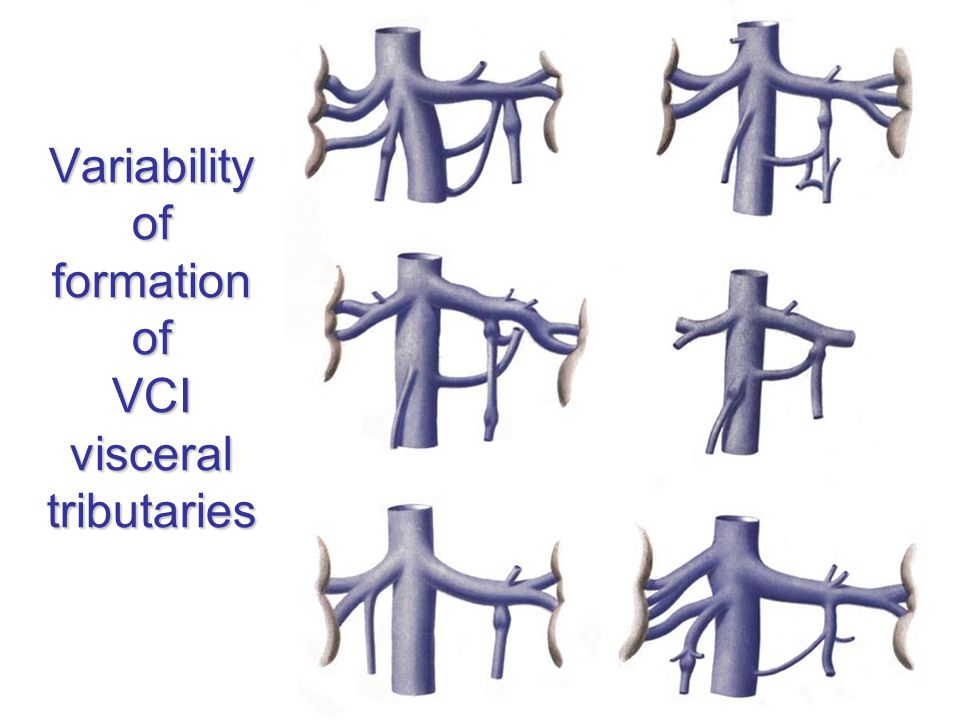 Variability of formation of VCI visceral tributaries