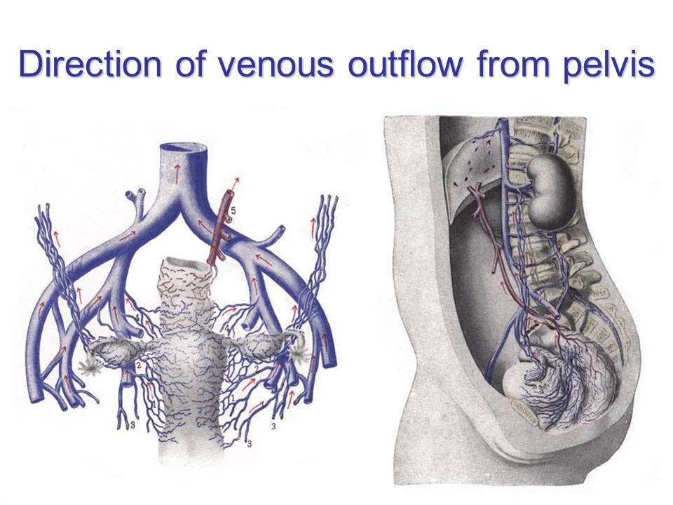 Direction of venous outflow from pelvis