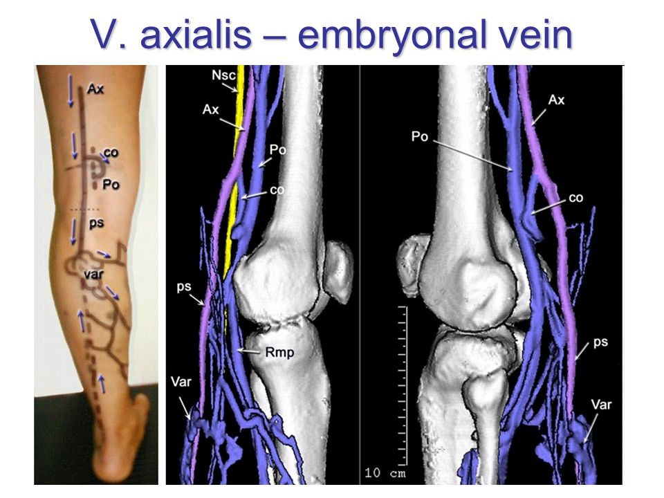 V. axialis – embryonal vein
