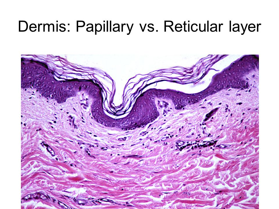 Dermis: Papillary vs. Reticular layer