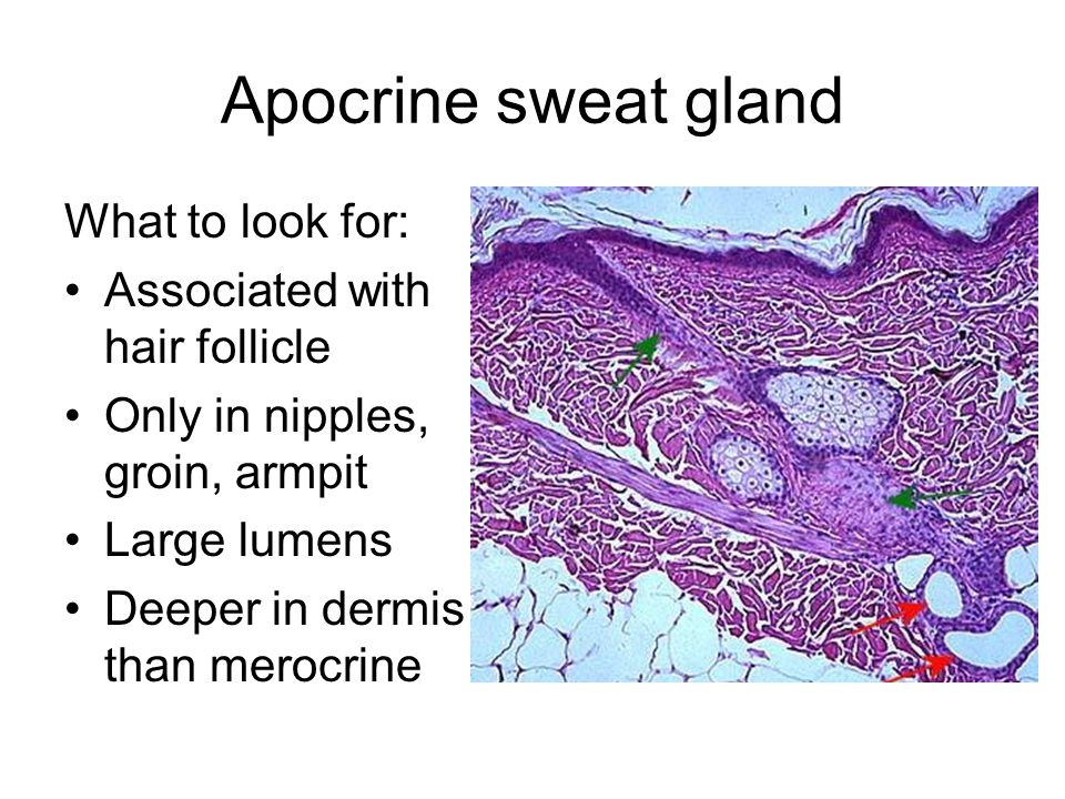 Apocrine sweat gland What to look for: Associated with hair follicle