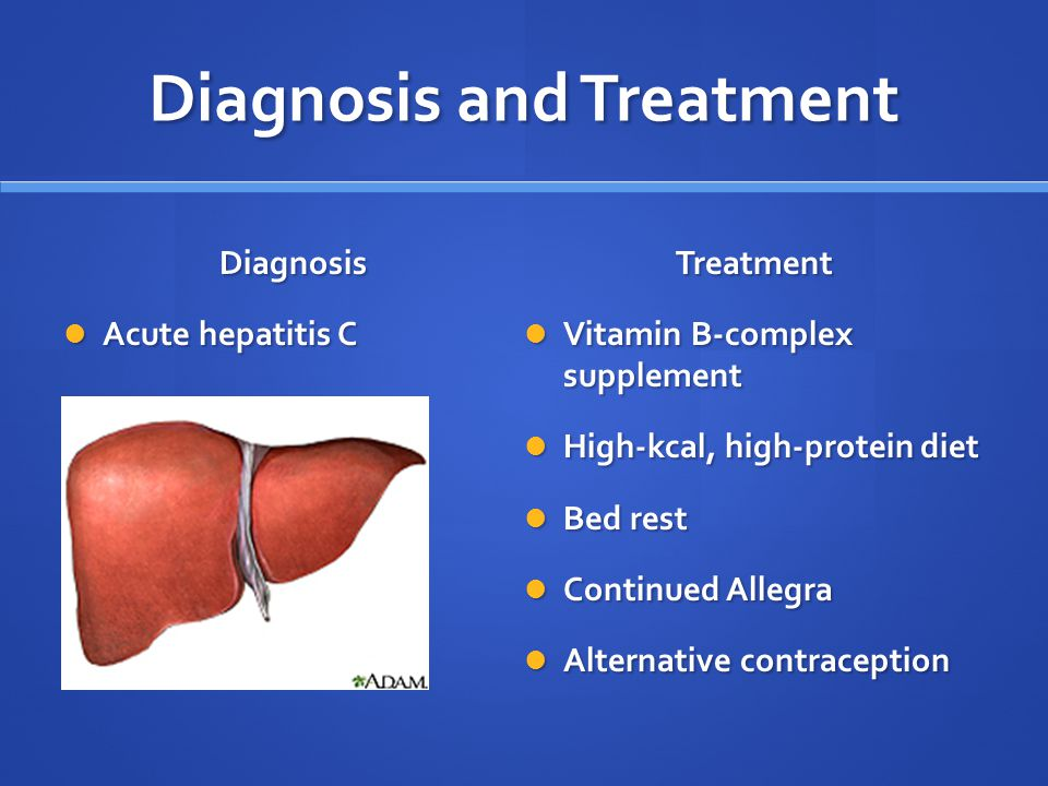 Image result for Diagnosis and Treatment of Hepatitis C