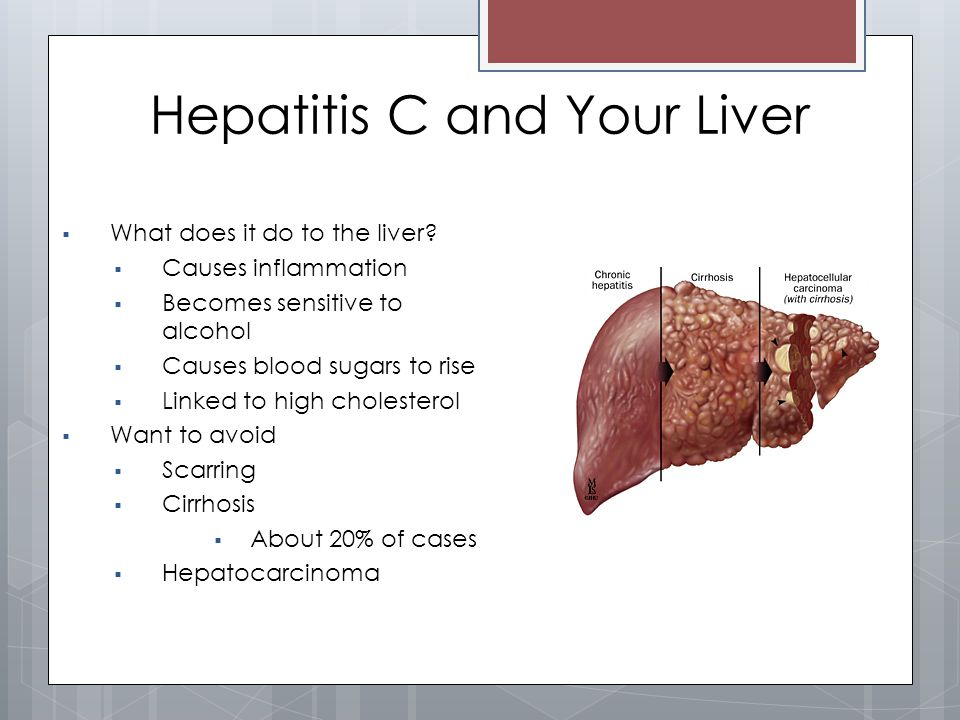 hepatitis c. - ppt video online download, Cephalic Vein