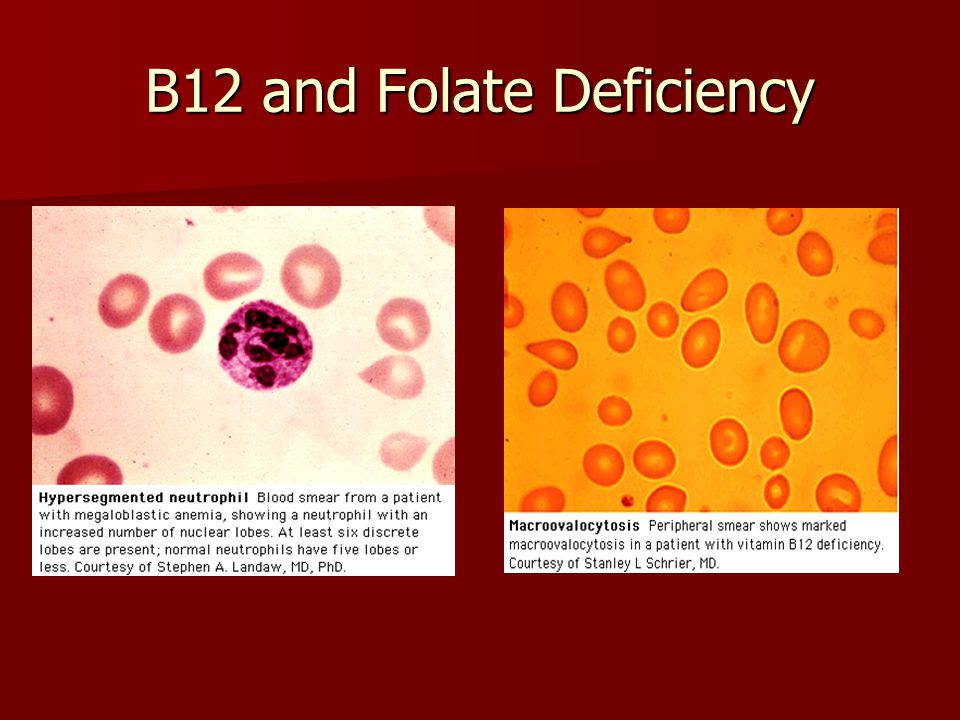 Anemia Robb Friedman, MD - ppt download B12 Deficiency Smear