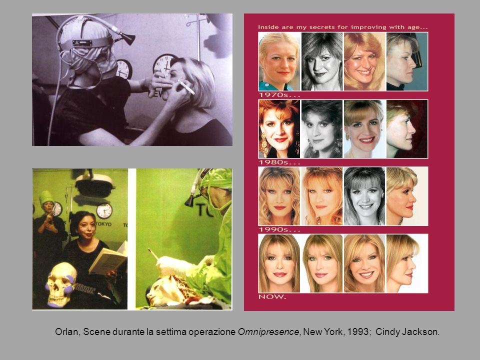 Orlan, Scene durante la settima operazione Omnipresence, New York, 1993; Cindy Jackson.
