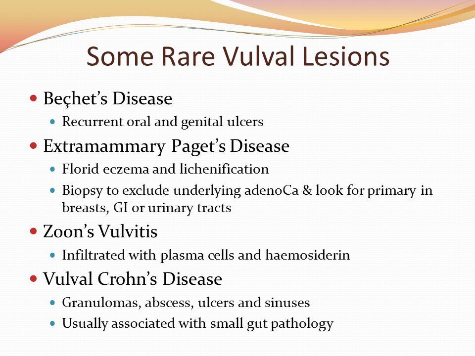 Some Rare Vulval Lesions
