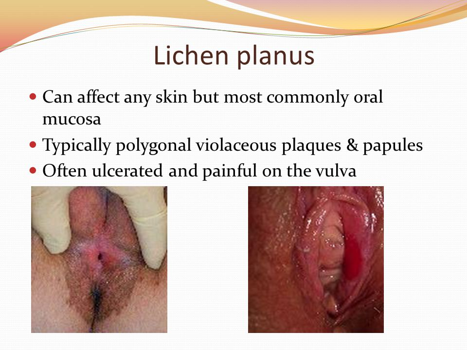 Lichen planus Can affect any skin but most commonly oral mucosa