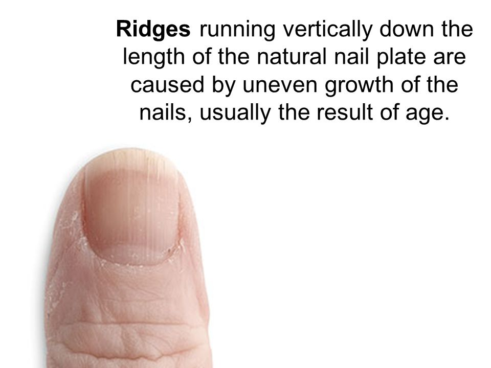 Nail Disorders. - ppt video online download