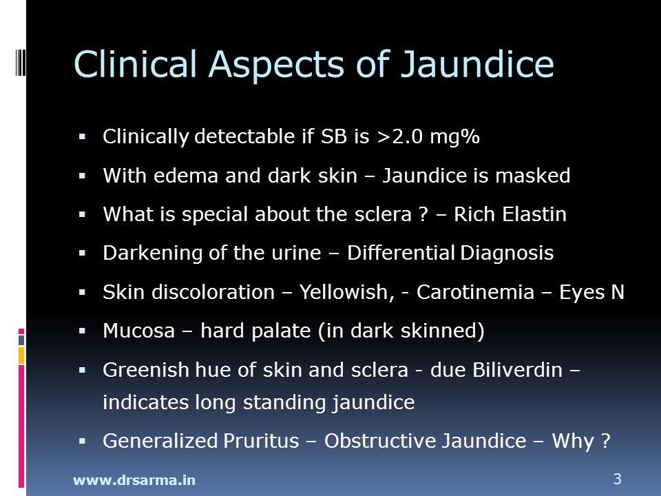 Clinical Aspects of Jaundice
