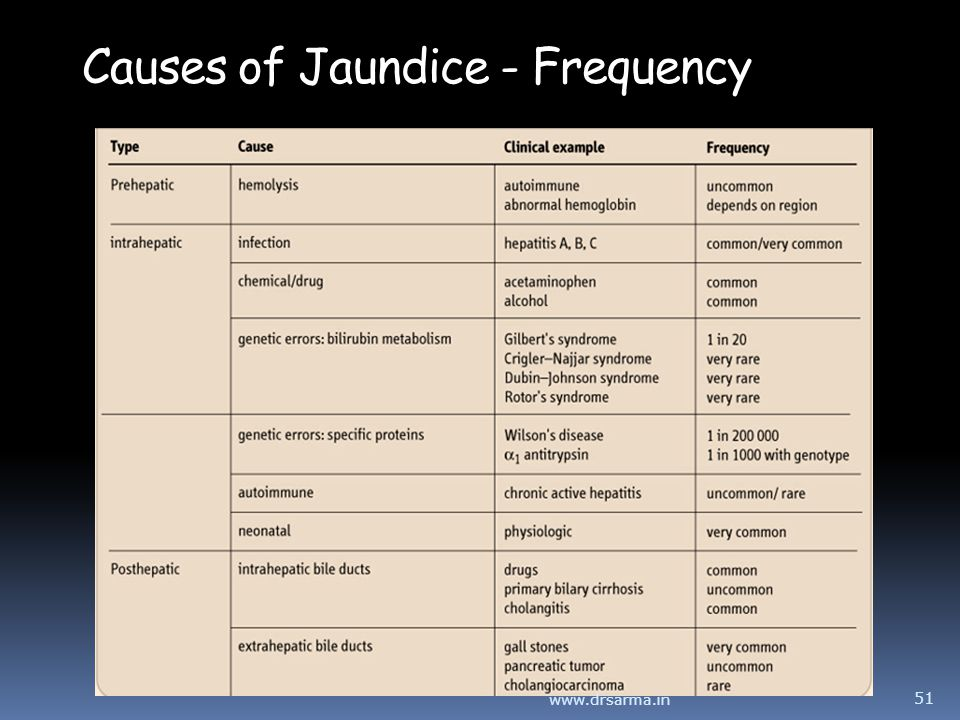 Causes of Jaundice - Frequency