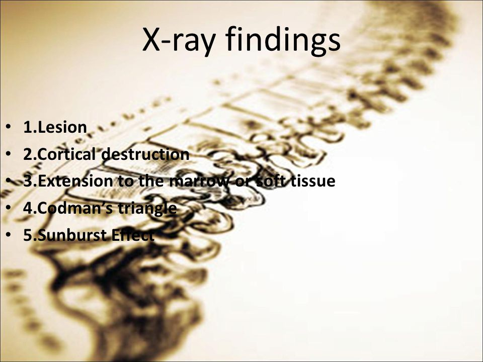 X-ray findings 1.Lesion 2.Cortical destruction