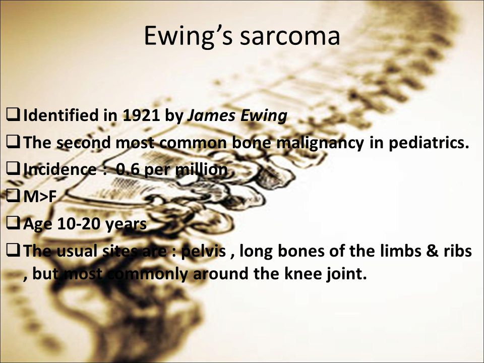 Ewing's sarcoma Identified in 1921 by James Ewing
