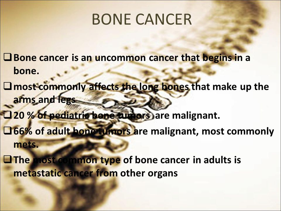 BONE CANCER Bone cancer is an uncommon cancer that begins in a bone.