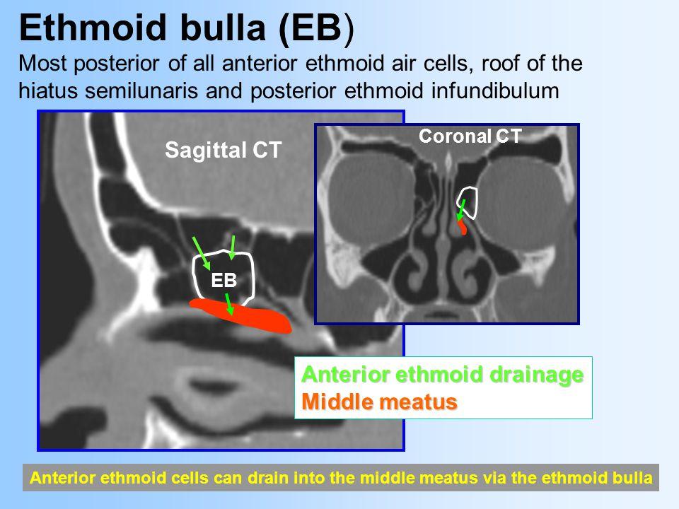 CERTIFICATE OF MERIT RSNA 2003 P. Loubeyre1 MD & J.S ...  Ethmoid