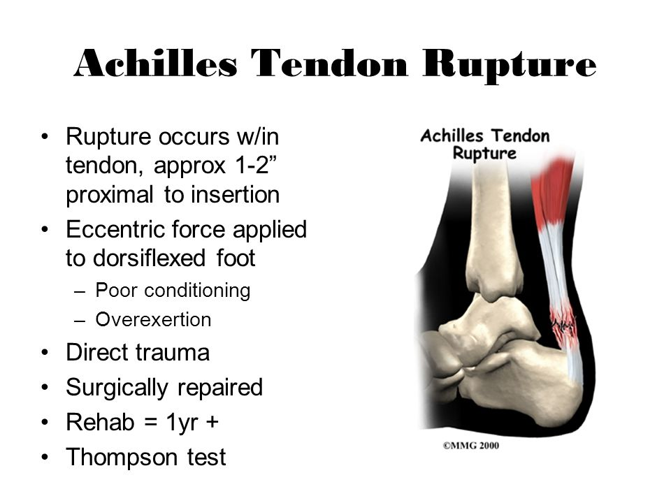 rehab of achilles tendon rupture Free essay: phase 1-acute phase: immediately after the injury occurs, the individual needs to begin the basic steps of treatment although the steps seem.