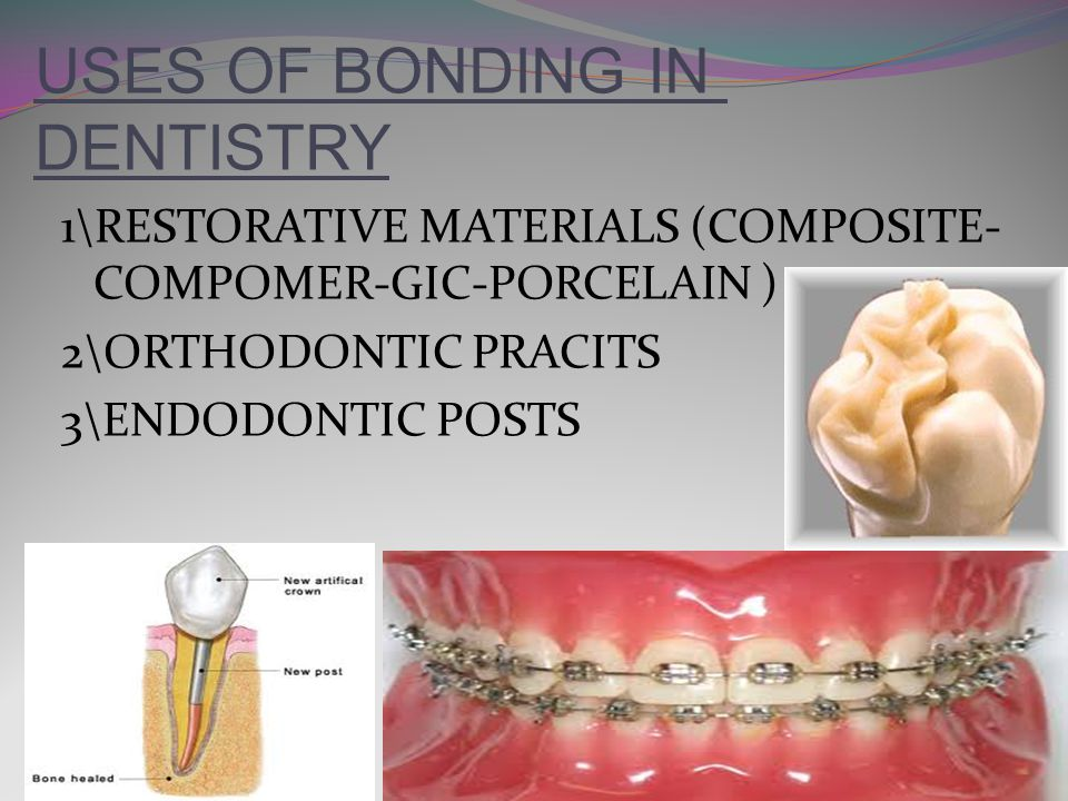 USES OF BONDING IN DENTISTRY