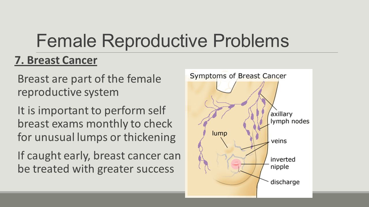 why is it important to learn about male and female anatomy? - ppt, Muscles