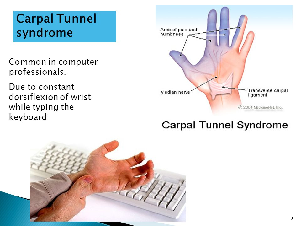 how to avoid carpal tunnel when typing
