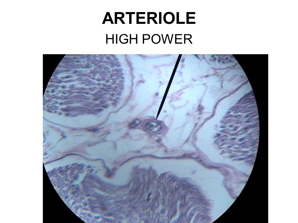 ARTERIOLE HIGH POWER