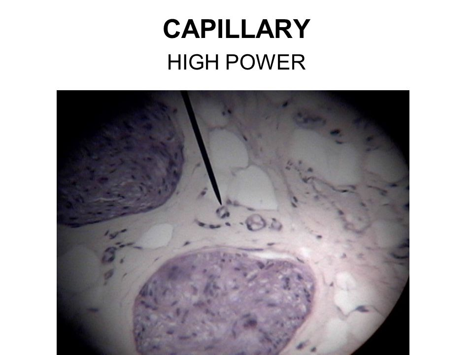 CAPILLARY HIGH POWER