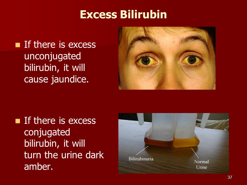 Excess Bilirubin If there is excess unconjugated bilirubin, it will cause jaundice.