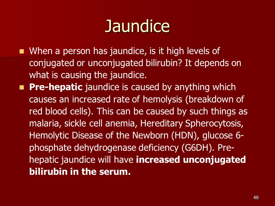 Jaundice When a person has jaundice, is it high levels of conjugated or unconjugated bilirubin It depends on what is causing the jaundice.