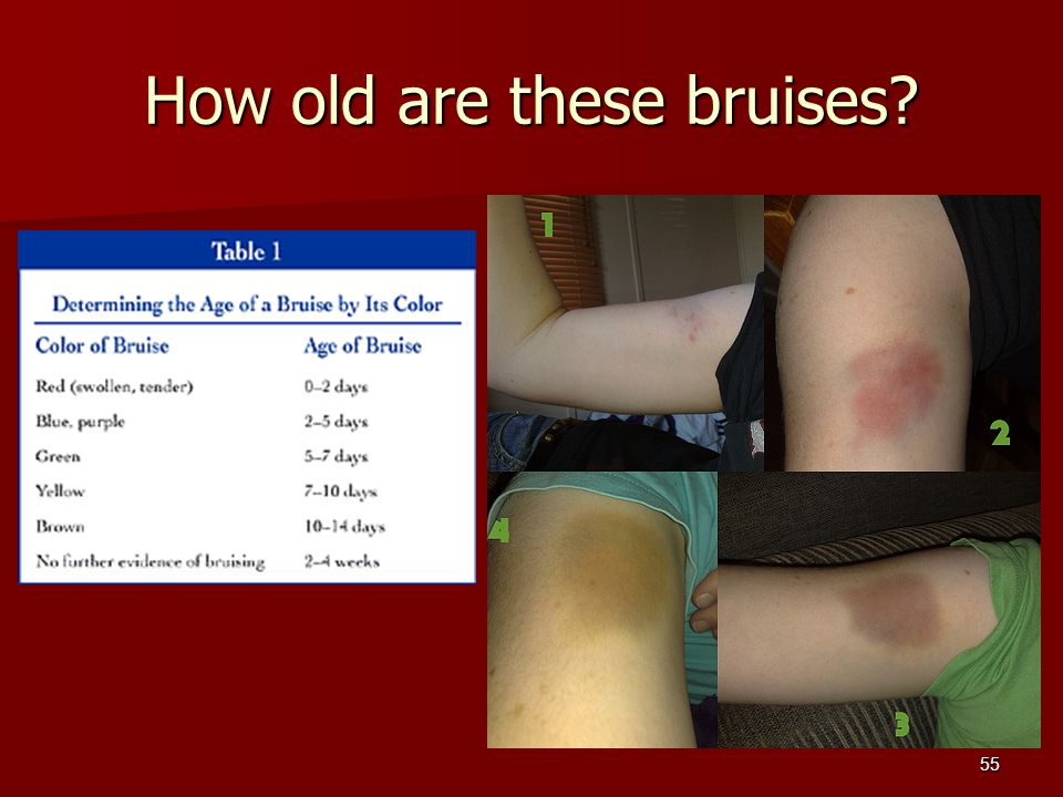 How old are these bruises