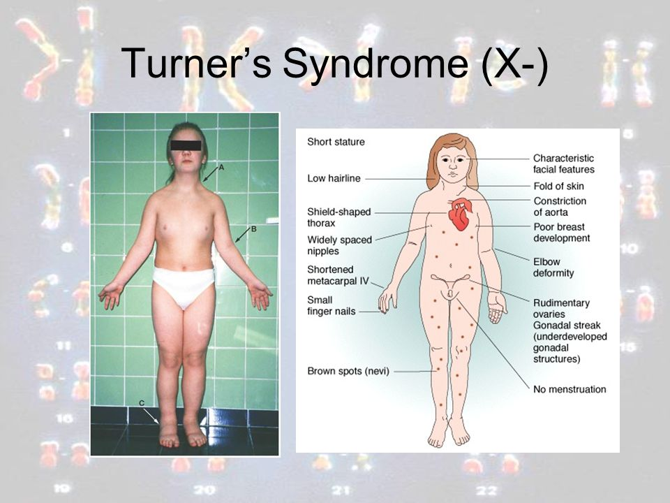 Turner's Syndrome (X-)