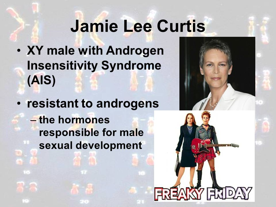 Jamie Lee Curtis XY male with Androgen Insensitivity Syndrome (AIS)