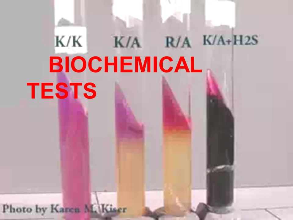 biochemical tests On these samples, routine haematological and biochemistry tests were carried  out in addition to the assessment of clinical parameters.