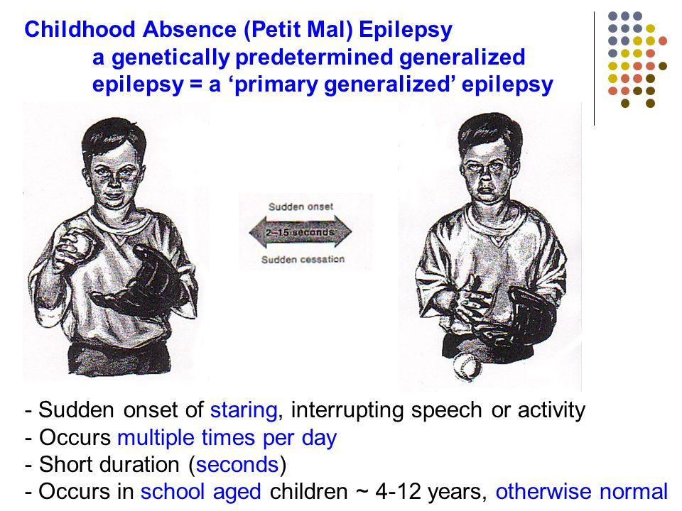childhood absence epilepsy During an absence seizure, children 'shut off' for a few seconds they stare blankly into space and don't know what's going on around them.