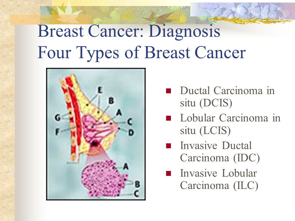 Good lcis of breast consider, that