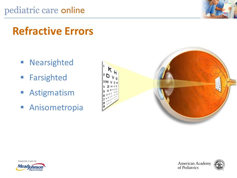screening of refractive errors models The visual system at birth is functional but very limited visual fixation is present in full-term, alert newborns, but the ability to follow targets (tracking) is usually not observed until about two months of age.
