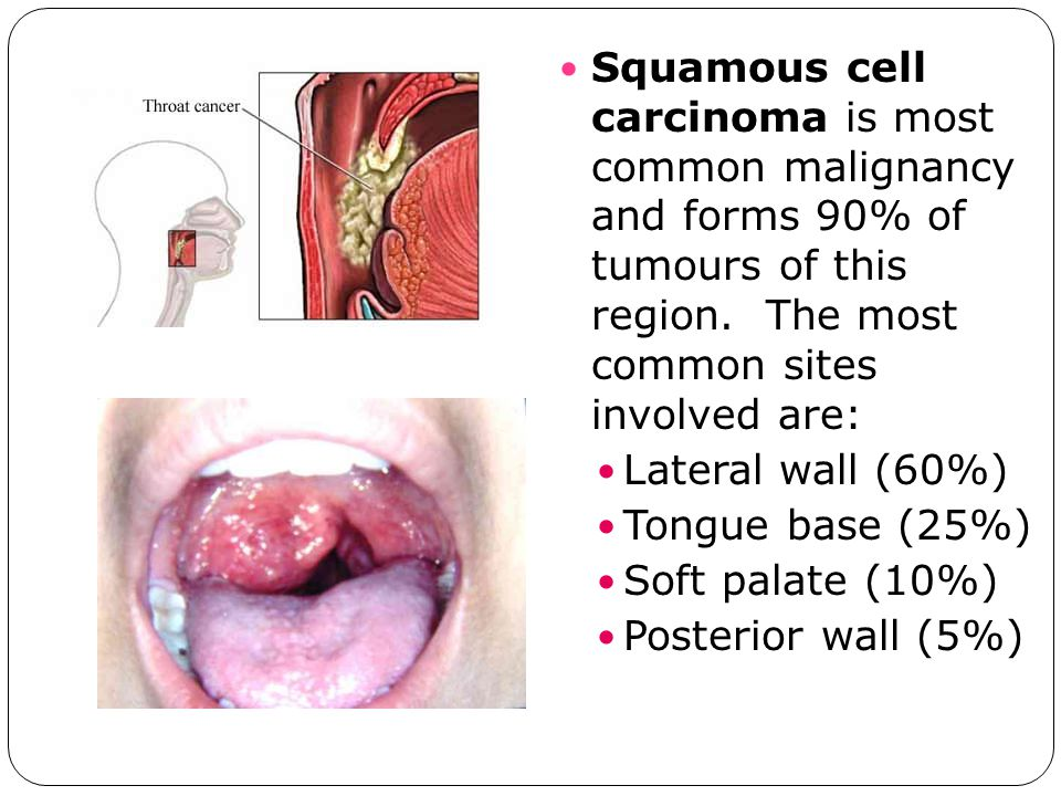 Squamous cell carcinoma is most common malignancy and forms 90% of tumours of this region. The most common sites involved are: