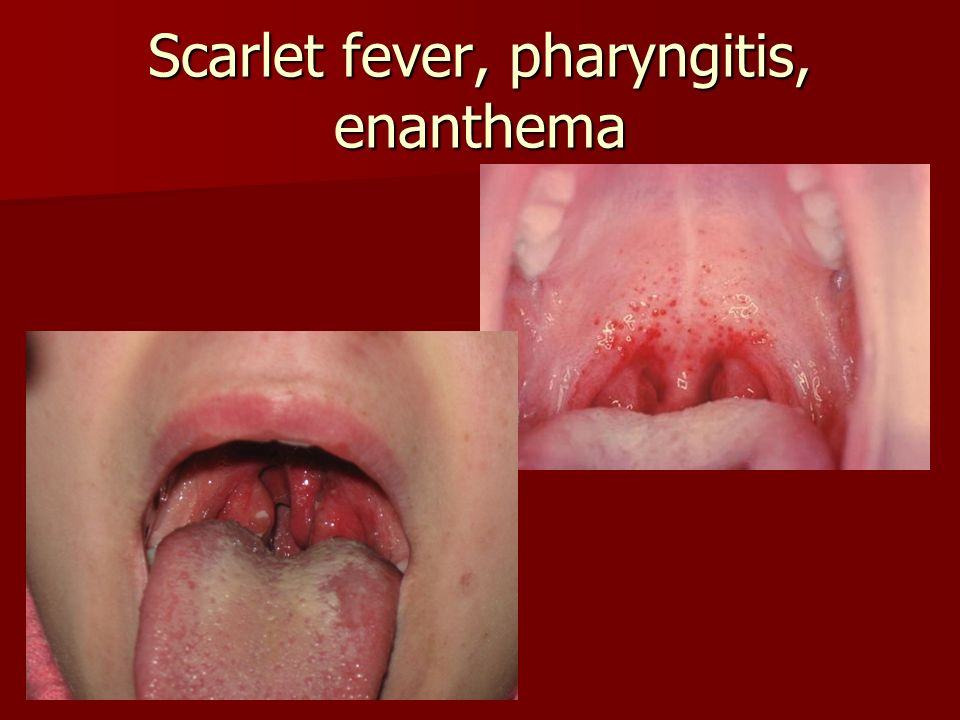 scarlet fever research paper Nursing research paper  scarlet fever is disease caused by exotoxin produced by group a beta-hemolytic streptococcus it occurs most commonly in age group 6-12 .
