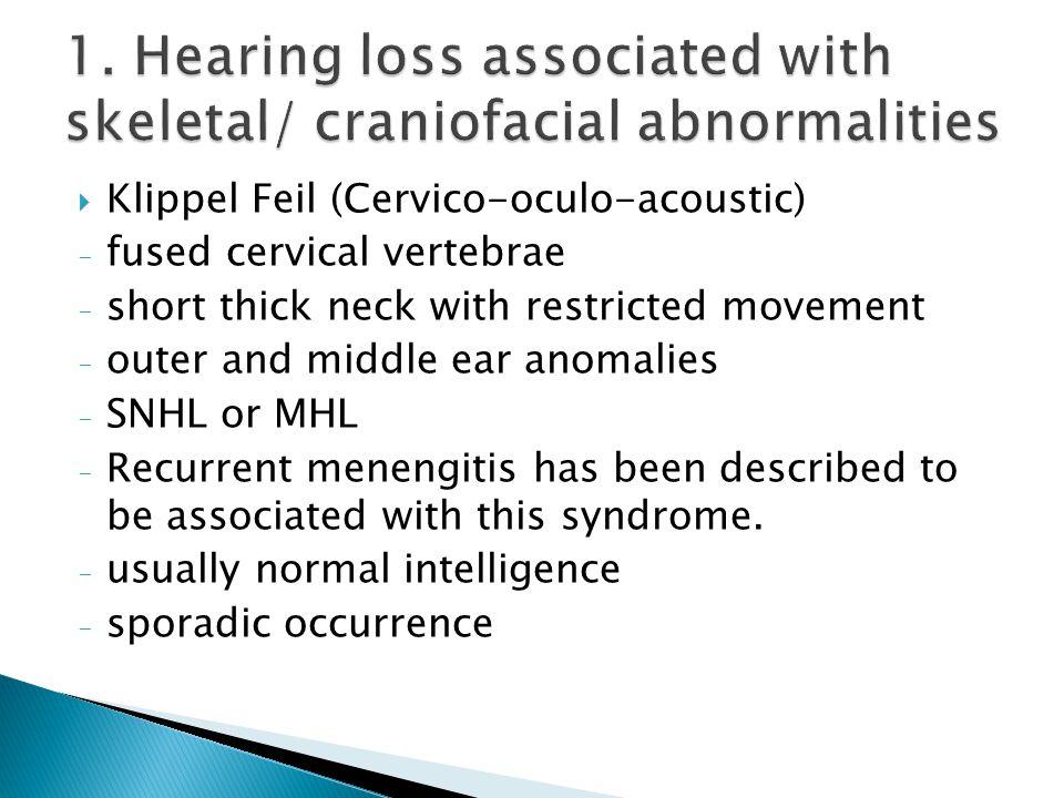 Klippel Feil Syndrome Syndromes associ...
