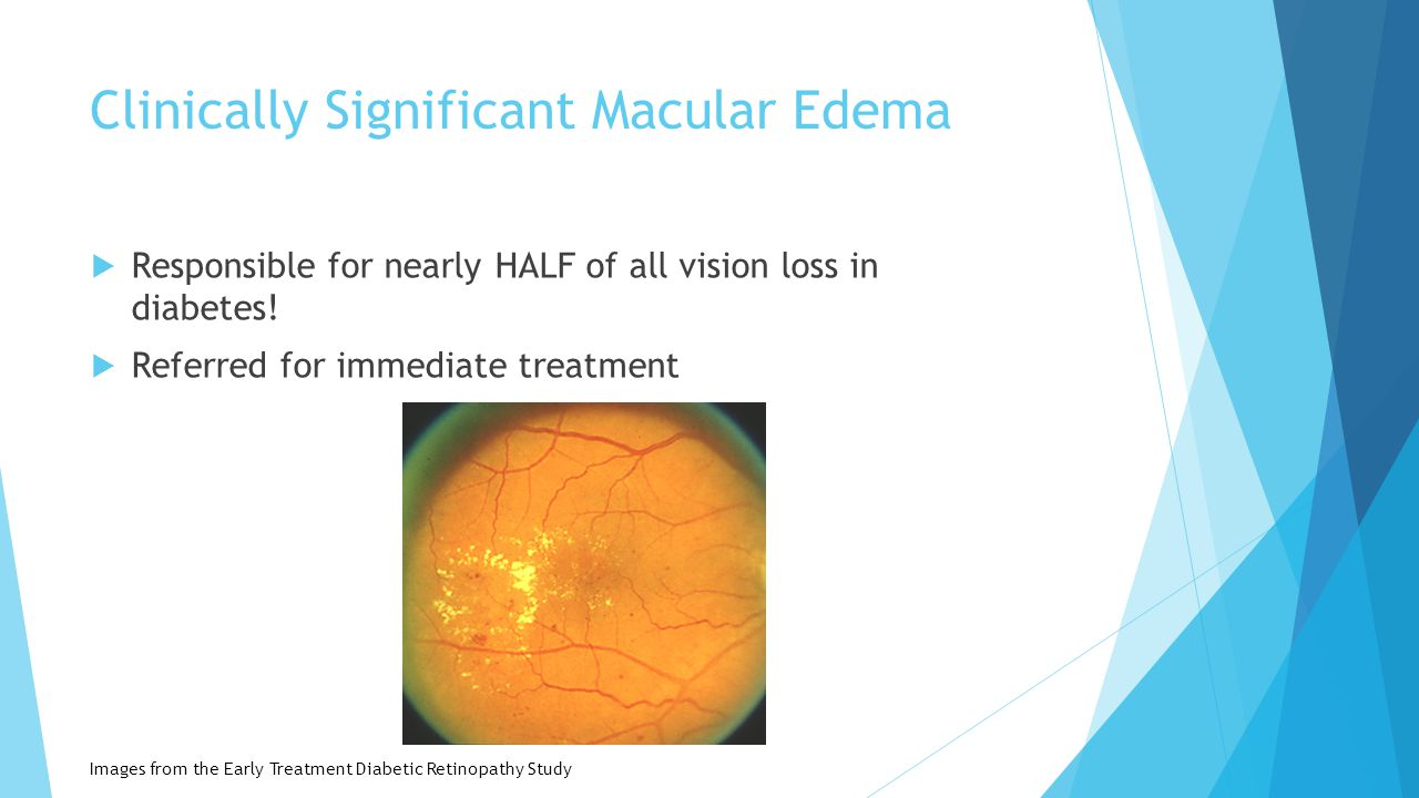the goal is in sight eye care concerns for patients with
