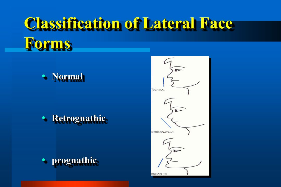 Classification of Lateral Face Forms