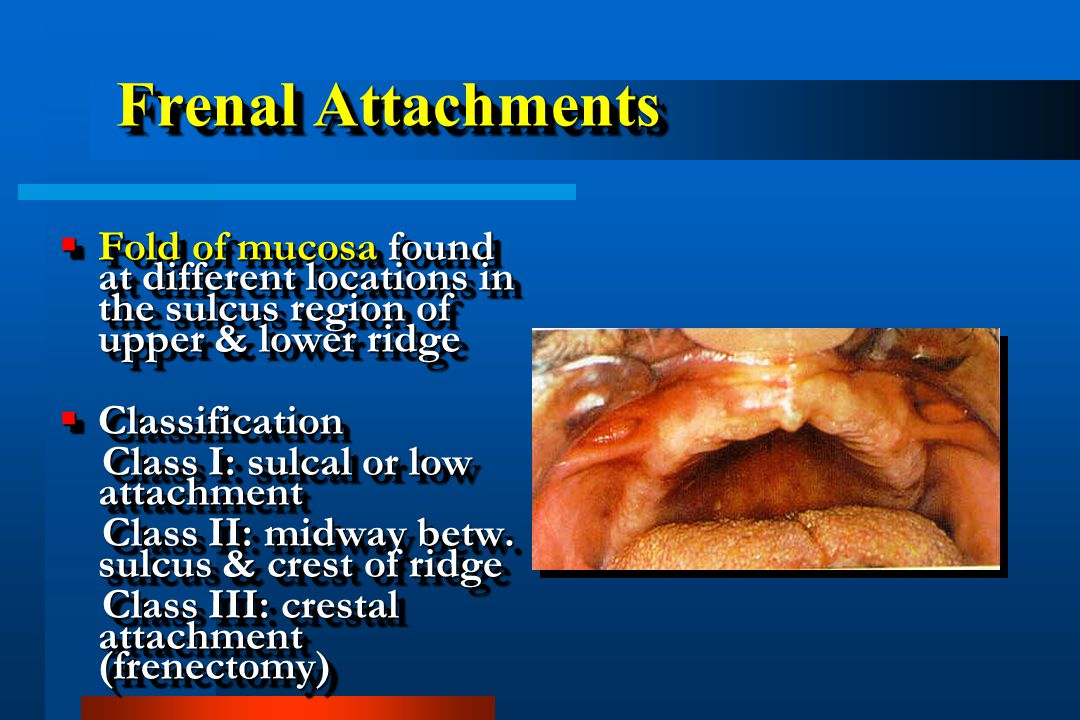 Frenal Attachments Fold of mucosa found at different locations in the sulcus region of upper & lower ridge.