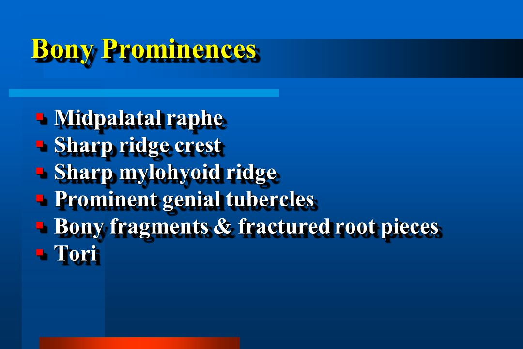 Bony Prominences Midpalatal raphe Sharp ridge crest