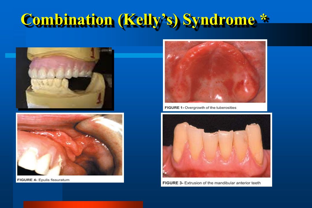 Combination (Kelly's) Syndrome *