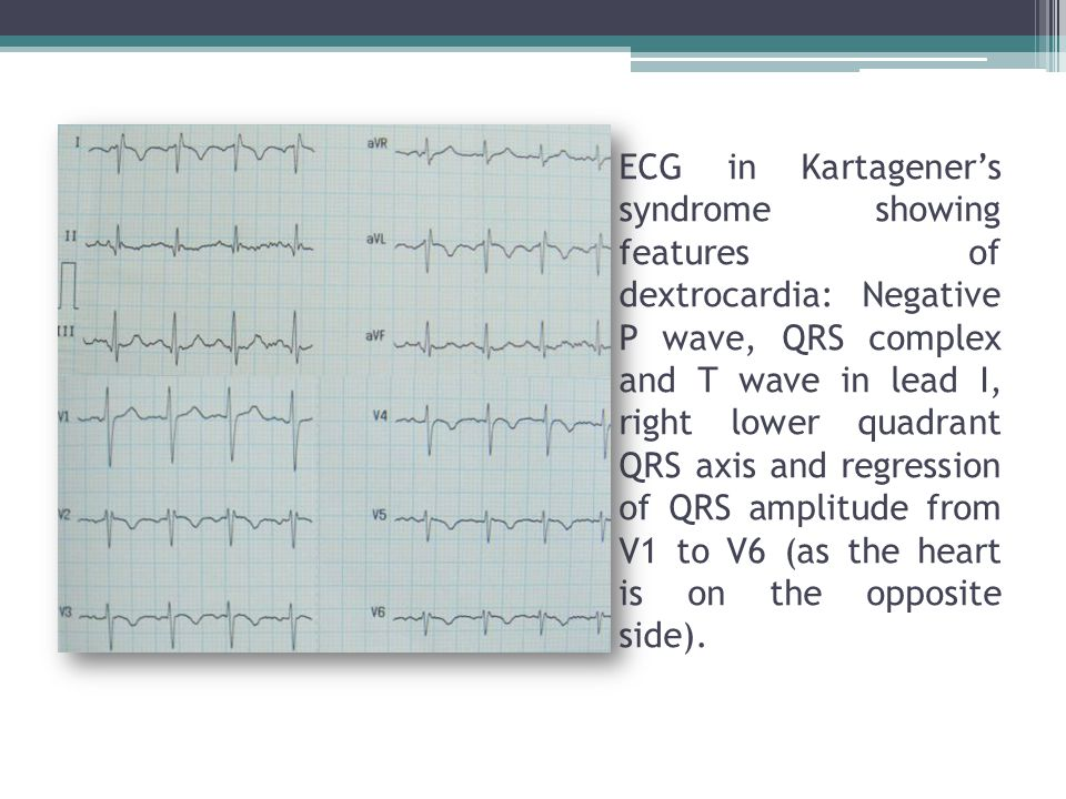 ECG in Kartagener's syndrome showing features of dextrocardia: Negative P wave, QRS complex and T wave in lead I, right lower quadrant QRS axis and regression of QRS amplitude from V1 to V6 (as the heart is on the opposite side).