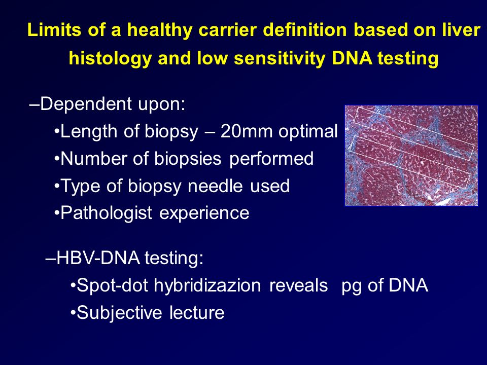 Limits of a healthy carrier definition based on liver histology and low sensitivity DNA testing
