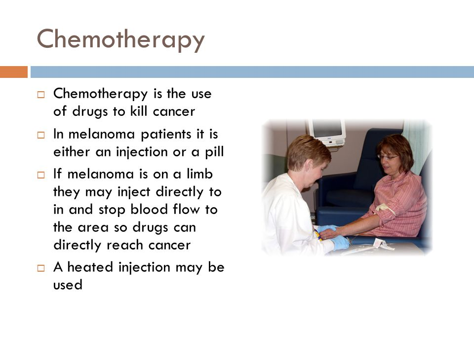 Chemotherapy Chemotherapy is the use of drugs to kill cancer
