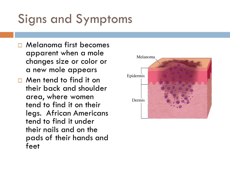 Signs and Symptoms Melanoma first becomes apparent when a mole changes size or color or a new mole appears.