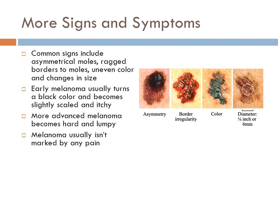 More Signs and Symptoms