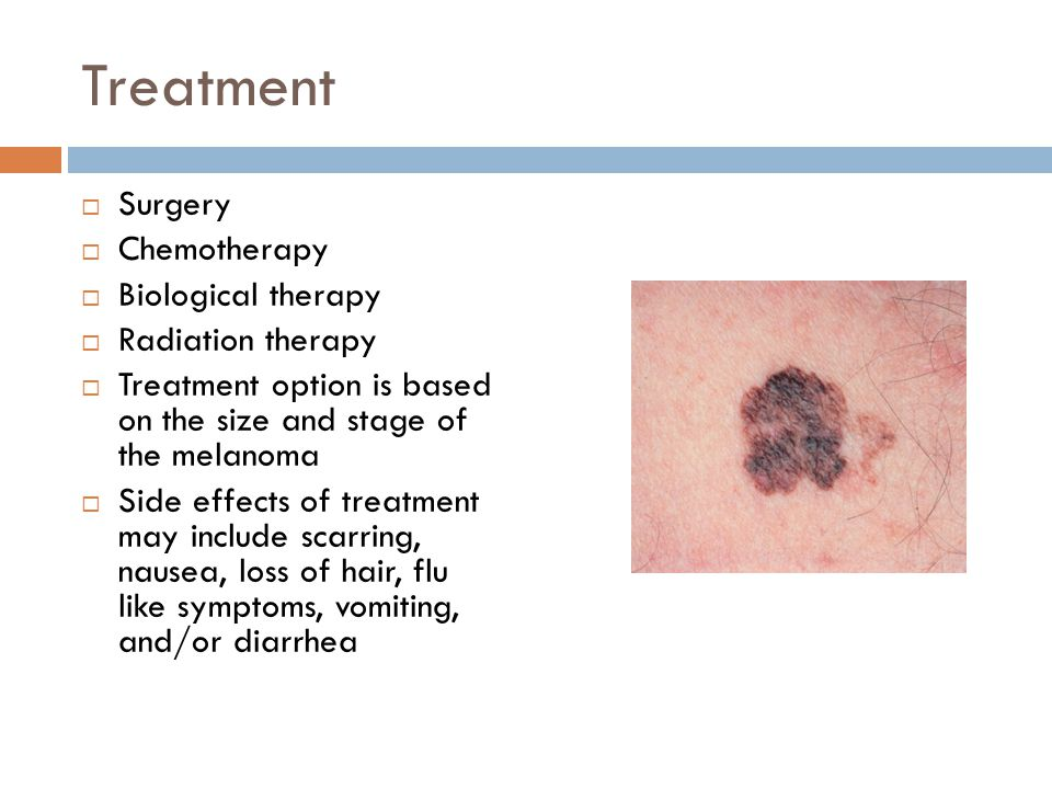 Treatment Surgery Chemotherapy Biological therapy Radiation therapy