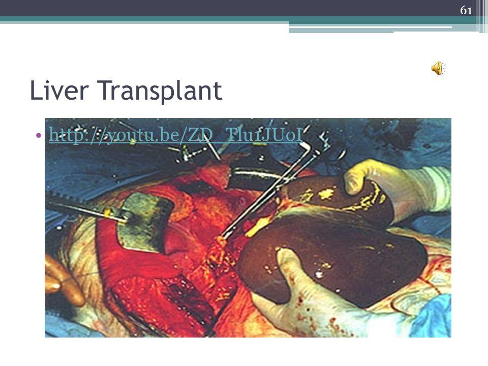 Liver Transplant http://youtu.be/ZD_Tlu1JUoI